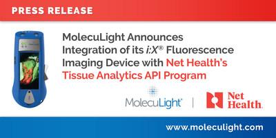 MolecuLight Announces Integration of its i:X® Fluorescence Imaging Device with Net Health's Tissue Analytics API Program